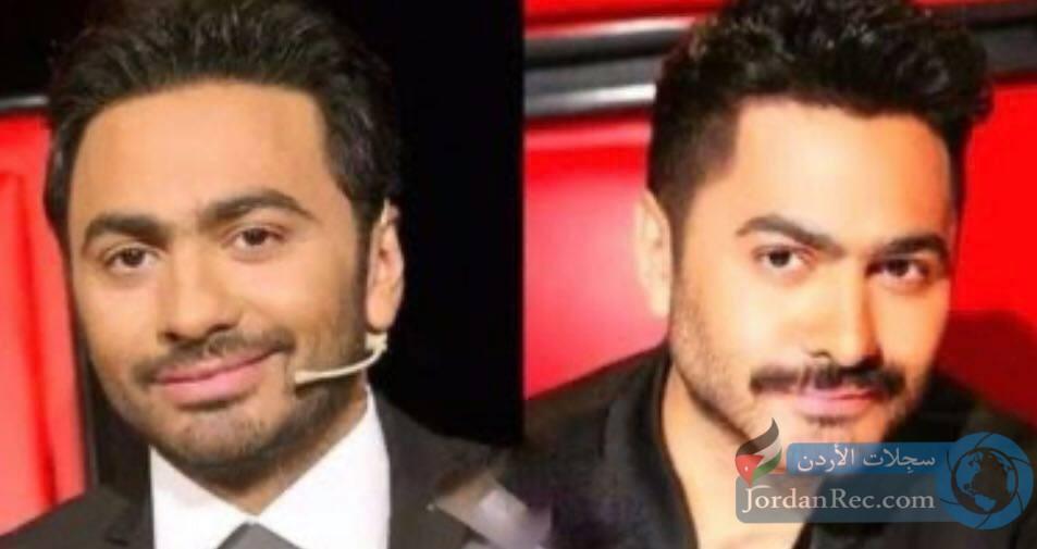الفنان تامر حسني قبل وبعد جراحة الغماز