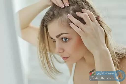 أفضل العلاجات المنزلية لقشرة الرأس