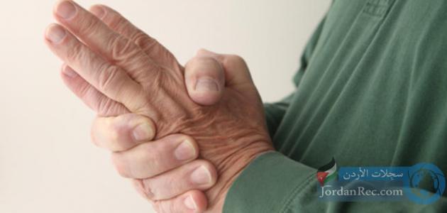 أسباب تنميل اليدين أثناء النوم