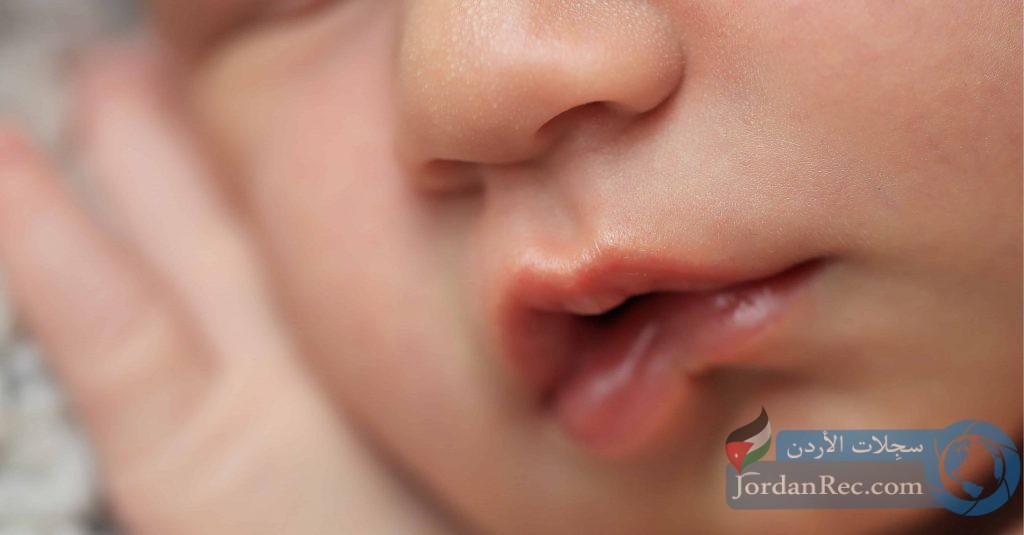 ربط الشفاه عند الطفل وطرق التعامل مع الأمر